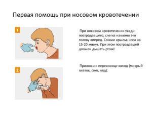 Буклет первая помощь при носовых кровотечениях